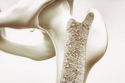 Esame MOC in farmacia prevenzione osteoporosi